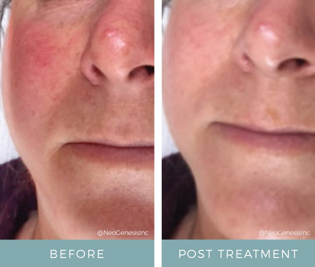 Before & After - Rosacea