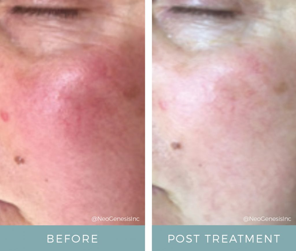 Before + After - Rosacea and Microcurrent