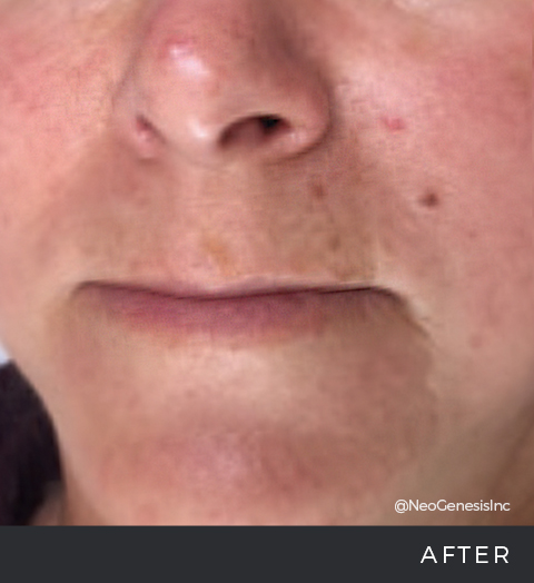 Before + After - Rosacea
