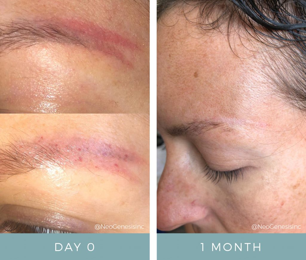 Before & After - Scarring