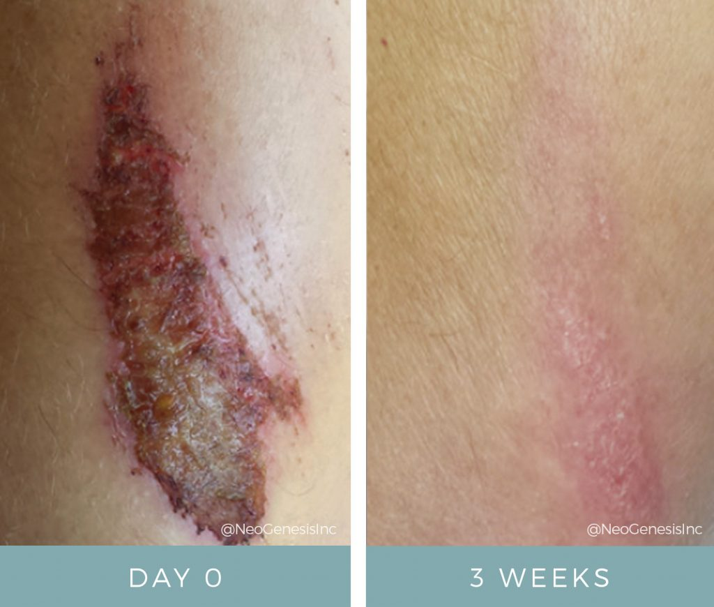 Before + After - Wound Care