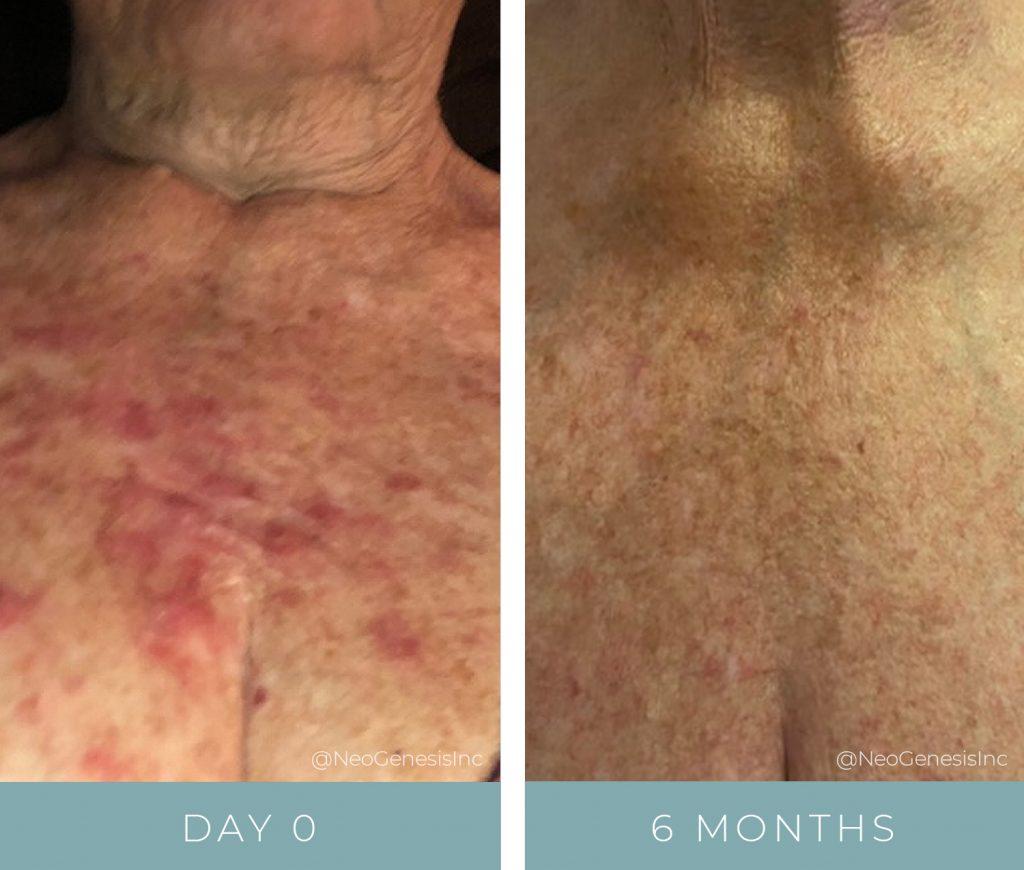 Before + After - Radiation Dermatitis