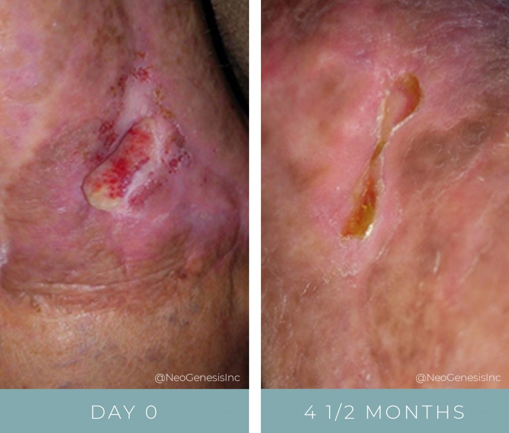 Before + After - Wound Care - Open Wound
