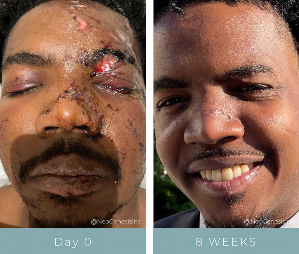 Before + After - Wound Care - Scarring